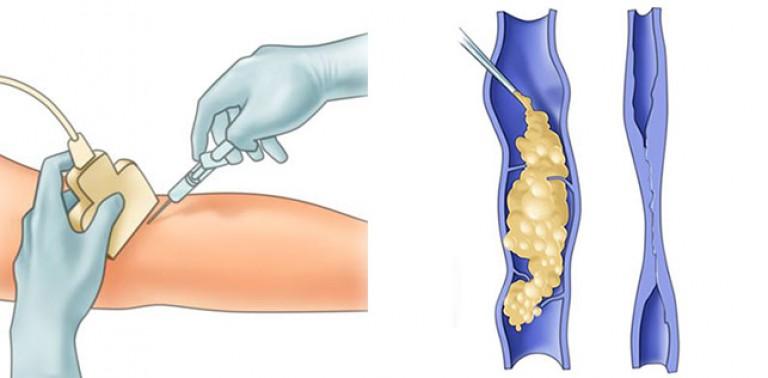 Лечение варикозной болезни в екатеринбурге thumbnail