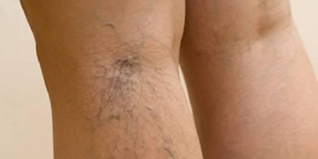 Купить чулки от варикоза вен на ногах
