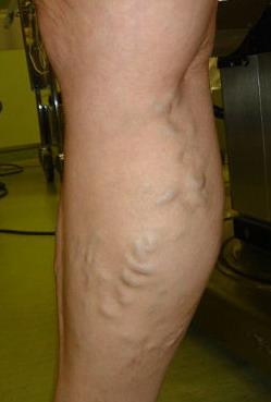 Зудят вены на ногах лечение