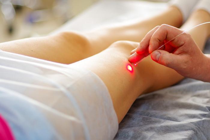 Основные способы лазерной терапии