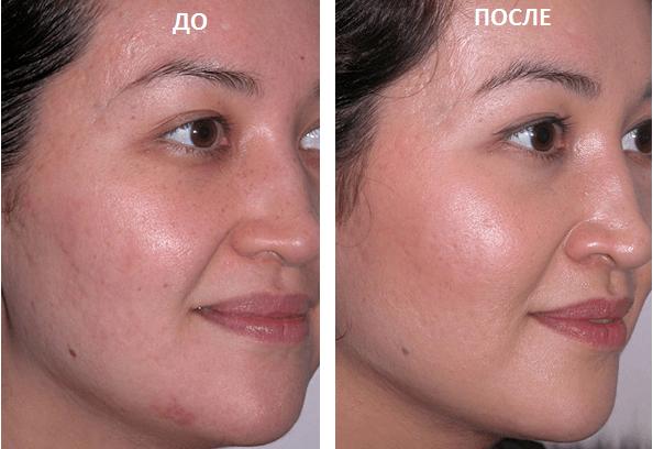 Отбеливание кожи пигментные пятна